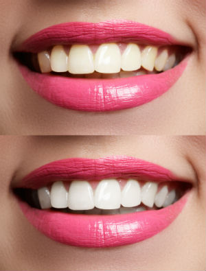 Cosmetic Dentistry in Parker