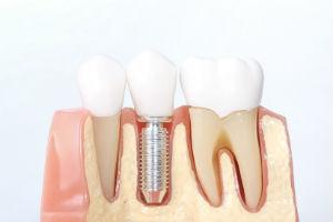 Dental Implants in Parker