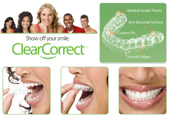 Clear Correct at Stonegate Dental Care in Parker CO