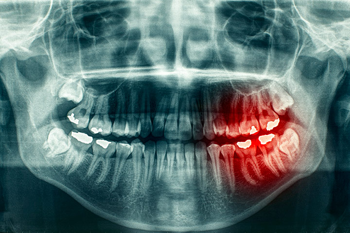 Digital Dental X-Rays Parker CO
