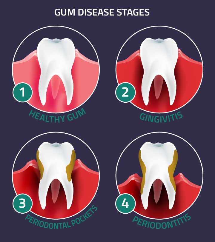 Gingivitis and Periodontitis Disease in Parker